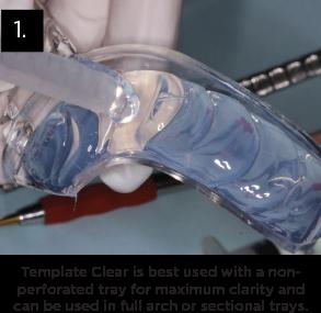 Clinician's Choice Template Clear Universal Clear Matrix Material Clinical Technique