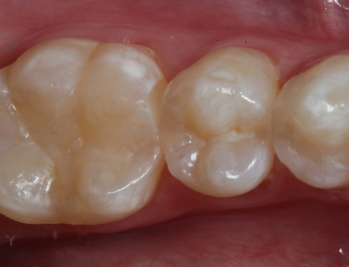 Optimizing Aesthetics and Predictability in the Placement of Posterior Composite Resin Restorations