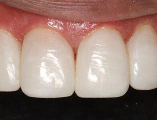 Direct Composite Veneers vs. Porcelain Veneers