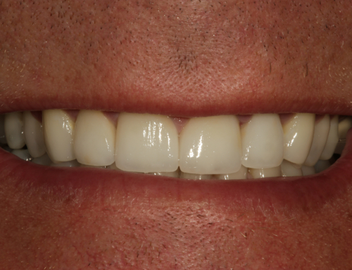 Maxillary Anterior Aesthetic Reconstruction on Natural Teeth and Dental Implants – A Case Report