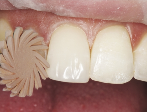 Improve the Overall Quality of your Composite Restorations